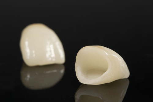 The Best Crown For Your Tooth - ceramic crown