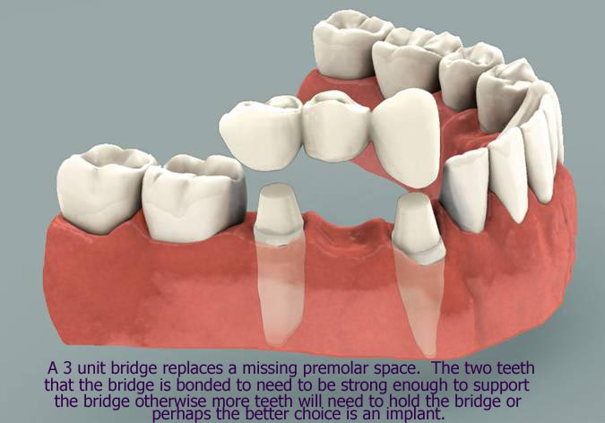 dental bridge, Langley Dentist